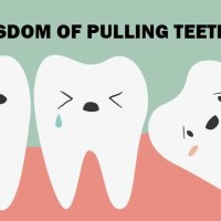 Surviving Wisdom Tooth Extraction 101